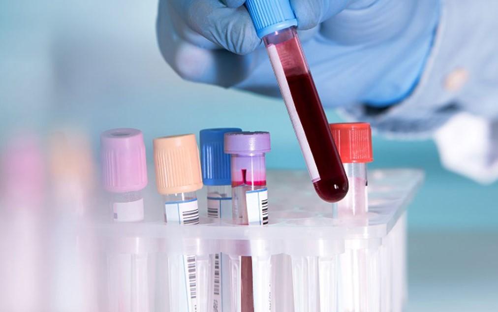 Τεστ αίματος προβλέπει αν η γυναίκα θα έχει την τελευταία περίοδο της στα επόμενα 1-2 χρόνια