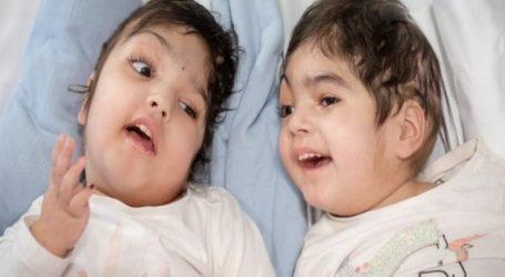 Βρετανία: Σιαμαία κορίτσια διαχωρίστηκαν με επιτυχία έπειτα από 50 ώρες χειρουργείου