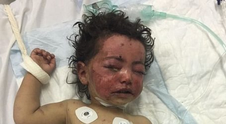 Υεμένη: Συνεχίζεται το λουτρό αίματος | 150 νεκροί στις μάχες της Χοντέιντα | Άμεση απειλή για τη ζωή των παιδιών στα νοσοκομεία